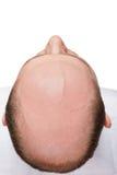 Pista calva del hombre Imagen de archivo libre de regalías