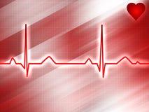 Pista del electrocardiograma Imagen de archivo libre de regalías