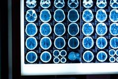 Pista MRI Fotos de archivo libres de regalías
