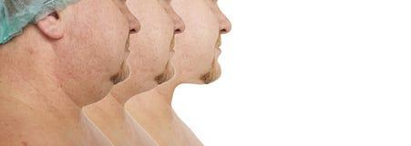 Plástico masculino de la corrección de la barbilla doble antes y después de procedimientos foto de archivo libre de regalías