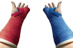 Plâtre deux bras Photo stock