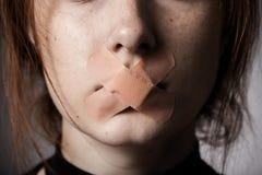 Plâtre sur la bouche Photo libre de droits
