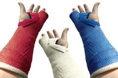Plâtre trois bras 1 Images libres de droits