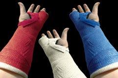 Plâtre trois bras 2 Images libres de droits