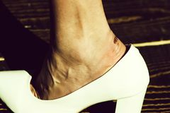Plâtres des pieds blessez à pied dans la chaussure à la mode blanche de la femme de charme images stock