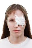 Plâtrez la correction sur l'oeil de blessure Photographie stock