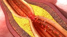 Placa de la arteria coronaria imagen de archivo