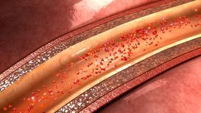 Placa de la arteria coronaria fotografía de archivo libre de regalías