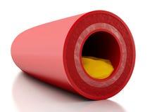 placa del colesterol 3d en arteria Foto de archivo