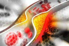 Placa del colesterol en arteria stock de ilustración