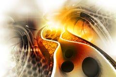 Placa del colesterol en arteria Imagen de archivo