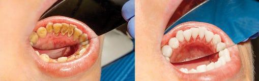 Placca del paziente, calcolo Trattamento di odontoiatria di plaq dentario immagine stock
