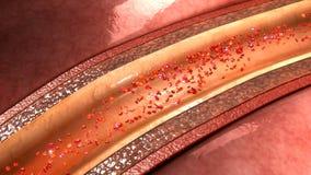 Placca dell'arteria coronaria Fotografia Stock Libera da Diritti