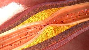 Placca dell'arteria coronaria Fotografie Stock Libere da Diritti