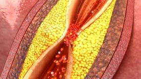 Placca dell'arteria coronaria Fotografia Stock