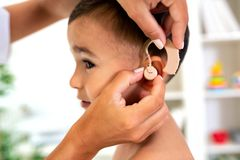 Placement of the hearing aid medical device. On child's ear done by his doctor stock image