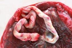 Placenta humana fresca Fotografía de archivo libre de regalías