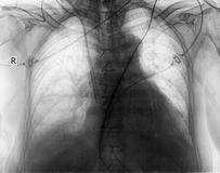 Plain chest radiograph of patient after surgery Royalty Free Stock Photos