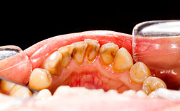 Plakette auf kranken Zähnen Stockfoto