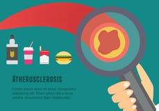 Plan illustration för Atherosclerosis Atherosclerosisriskfaktorer och orsaker Arkivfoto