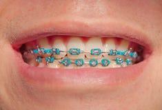 Plan rapproché d'un garçon souriant avec des accolades Photographie stock libre de droits