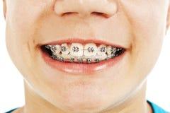 Plan rapproché d'un jeune adolescent de sourire avec des supports Photo stock