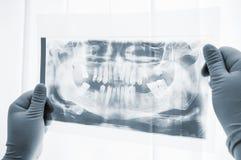 Plan rapproché de balayage de rayon X de préparation de chirurgie dentaire Images libres de droits