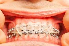 Plan rapproché de bouche de l'homme avec des accolades et des anneaux en caoutchouc Photographie stock