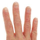 Plan rapproché de dermatite d'Eczema sur des doigts Photographie stock libre de droits