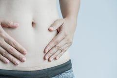 Plan rapproché de femme montrant sur sa cicatrice foncée de ventre photographie stock