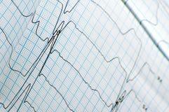 Plan rapproché de graphique d'ECG Photos stock