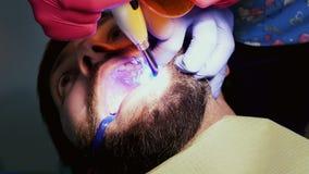 Plan rapproché de patient dans la clinique dentaire Dent ultra-violette d'homme de dentiste pour remplir dent banque de vidéos