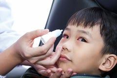 Plan rapproché des gouttes pour les yeux de versement de docteur dans le patient d'oeil Photos libres de droits