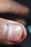 Plan rapproché extrême de blessure Image libre de droits