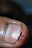 Plan rapproché extrême de blessure Photos libres de droits