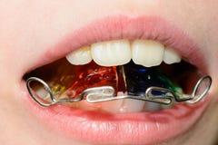 Plan rapproch? d'une plaque de m?tal dans la bouche sur les dents d'un petit gar?on photographie stock