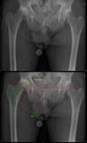 Planear para o endoprosthesis do quadril Fotografia de Stock