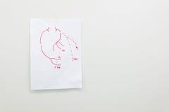 Planification pour la greffe de pontage de l'artère coronaire photo libre de droits