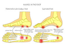 Plantar fasciitis_heel spur_sesamoidit Royalty Free Stock Photos
