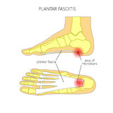 Plantar fasciitis. Illustration of Plantar fasciitis. Bottom and side view of skeletal ankle.  Used: gradient, transparency, Blend mode Stock Images