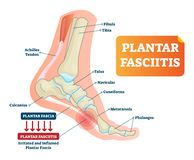 Plantar fasciitis vector illustration. Labeled human feet disorder diagram. Plantar fasciitis vector illustration. Labeled human feet sport disorder diagram vector illustration