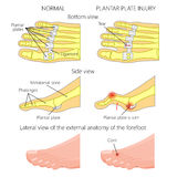Plantar plate tear. Hammer toe. Vector illustration diagram. Hammer toe. Plantar plate injury. Mechanism of rupture of plantar plate of the second toe of the Stock Photos