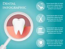 Plantilla dental para infographic Fotografía de archivo libre de regalías