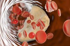 Plaque d'Atheroma à l'intérieur d'artère illustration libre de droits