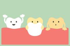 Plaque des dents illustration stock
