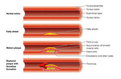 Plaque formation in artery. The development of an atheromatous plaque in the wall of an artery Stock Photo