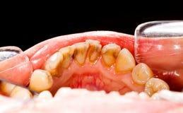 Plaque op Zieke Tanden Stock Foto