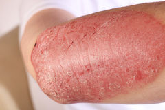 Plaque psoriasis. An immune related disease that causes inflammation of the epidermis with the formation of silvery scales or plaques on the surface, non stock photography