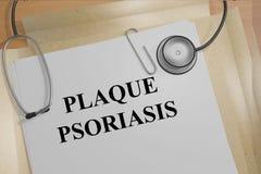 Plaque Psoriasis medicial concept Stock Photo