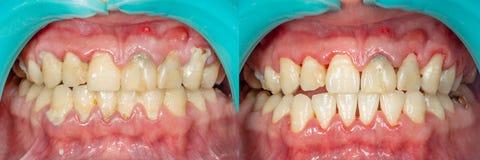 Plaque van de patiënt, steen Tandheelkundebehandeling van tandplaq stock afbeelding